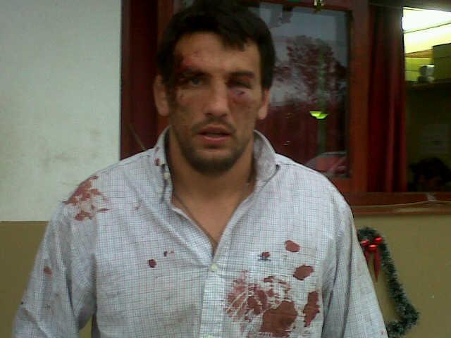 Gerónimo Saravia golpeado