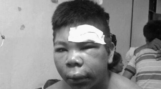 joven torturado en comisaría de Salta