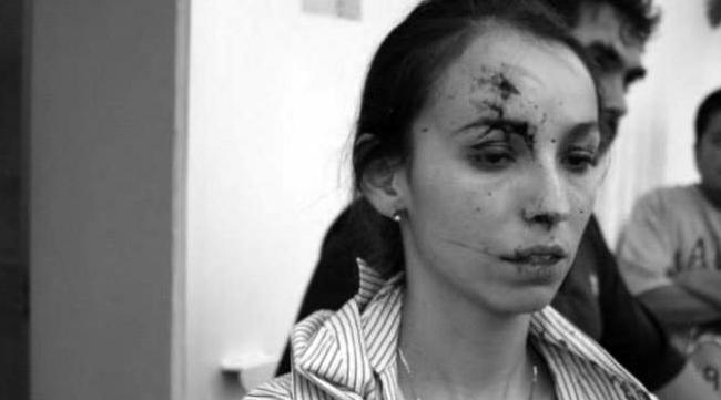 Periodista de El heraldo agredida 2