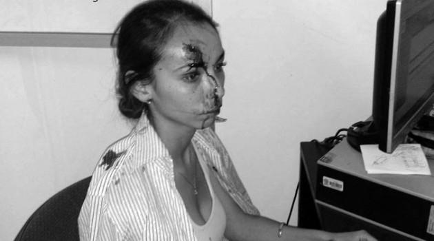 Periodista de El heraldo agredida