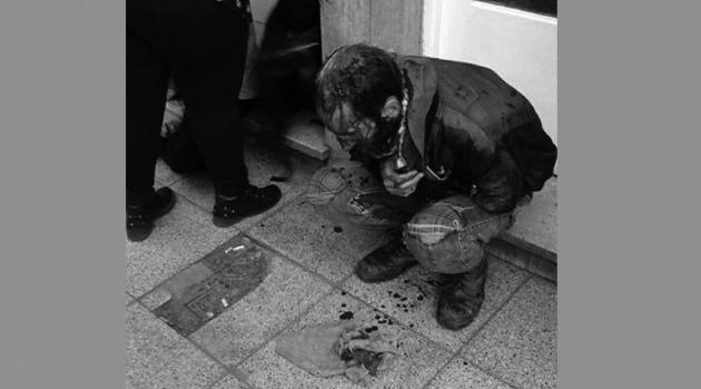 atacado por neonazis (1)