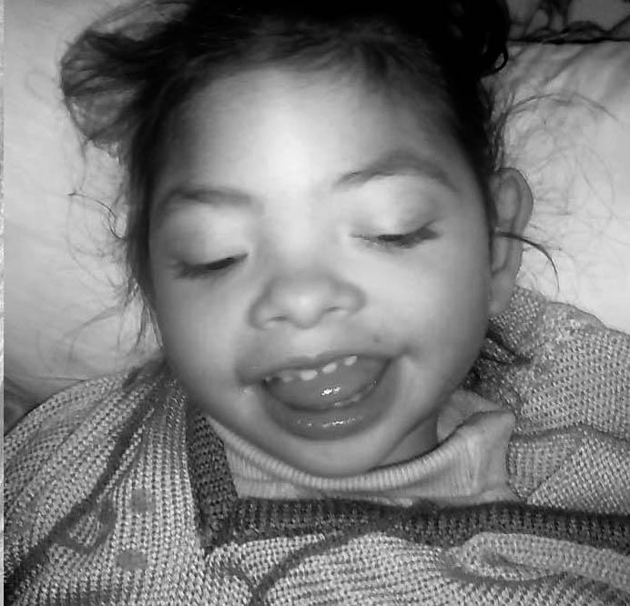 A Stephanie le diagnosticaron Síndrome de West. Tomaba seis pastillas diarias, sin resultado. La epilepsia empeoró y se tranformó Síndromede Lennox-Gastaut. El aceite de cannabis, la ayudó a subir de peso, aceptar el tratamiento y disminuir las convulsiones.