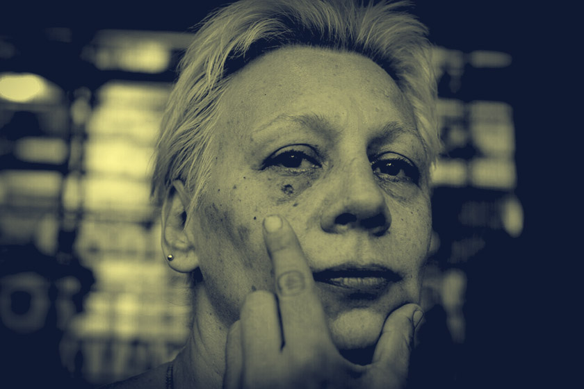 Una de las heridas durante la represión. Foto: Gala Abramovich