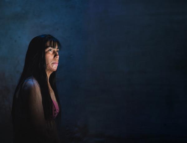 """En la Argentina muere una mujer cada 30 horas víctima de violencia de género.  Durante los últimos diez años los casos de violencia de género en Argentina han aumentado significativamente.Muchos de estos asesinatos y agresiones físicas han sido a causa de quemaduras.  Jurídicamente, la mayoría de estos casos quedan impunes a causa de las excusas de comprobación de los hechos reales ocurridos habitualmente en el ámbito doméstico.  Recién en noviembre de 2015 la Corte Suprema de Justicia de la Nación difundió el Primer Registro Nacional de Femicidios registrados por la Justicia Argentina, correspondientes al año 2014.  Ante el incremento de femicidios, desde 2015 a la fecha, se realizaron tres  manifestaciones multitudinarias a nivel nacional bajo la consigna """"Ni una menos"""" en contra la violencia de género.  Las ONG vinculadas a la violencia de género aseguran que """"una mujer tiene 8 veces más posibilidades de ser asesinada por alguien de su entorno, incluso de su propia casa, que de morir a manos de un extraño, en un robo"""".  Las mujeres aquí retratadas fueron quemadas por sus parejas.  """"Este método empleado apunta a la destrucción del cuerpo, ante todo de la piel, envoltura por la cual el cuerpo se constituye como deseable y deseante.""""---------------------------Maira Maidana (29) vive en San Francisco Solano, provincia de Buenos Aires, Argentina. A fines del año 2011 su pareja y padre sus dos hijos le prendió fuego al regresar de una fiesta familiar. """"Intente apagar las llamas bajo la ducha, pero no había agua."""" - Relató Maira. Estuvo internada en coma farmacológico durante 2 meses. Recibió 52 operaciones reconstructivas en su cuerpo, perdió la visión parcial del ojo derecho y la audición total del oido izquierdo. Su agresor esta en libertad. En Argentina muere una mujer cada 30 horas víctima de violencia de género."""