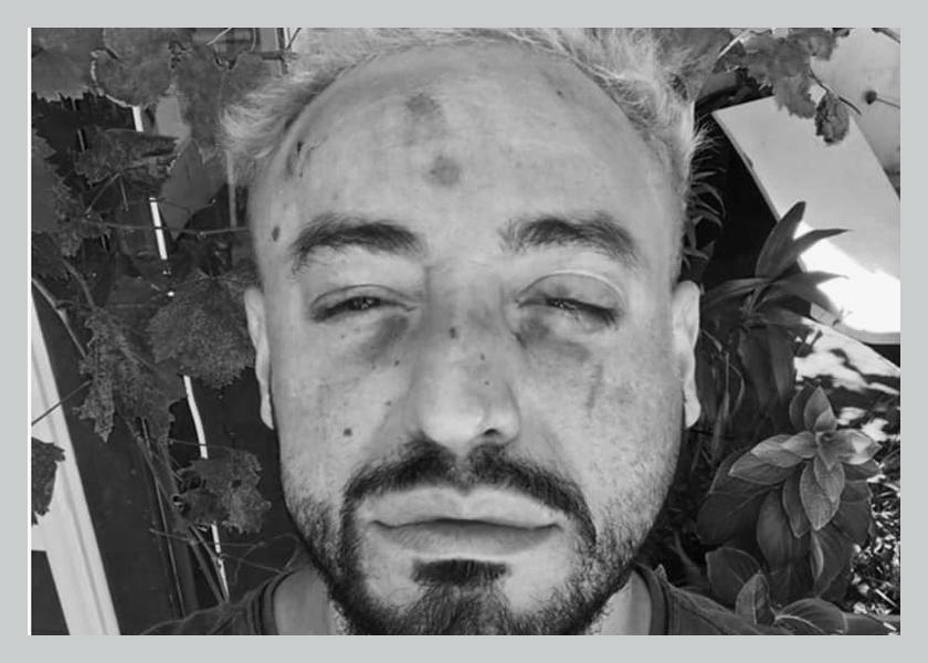 """Ataque a joven gay en Chaco: """"Querían matarme"""""""