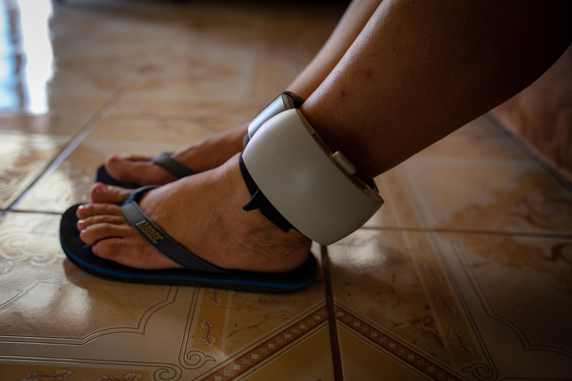 López Martínez, 'Mamá África' lleva una tobillera electrónica en el pie izquierdo, a la espera de su juicio en su casa en la provincia de Guanacaste. Fotografía: César Arroyo / La Voz de Guanacaste