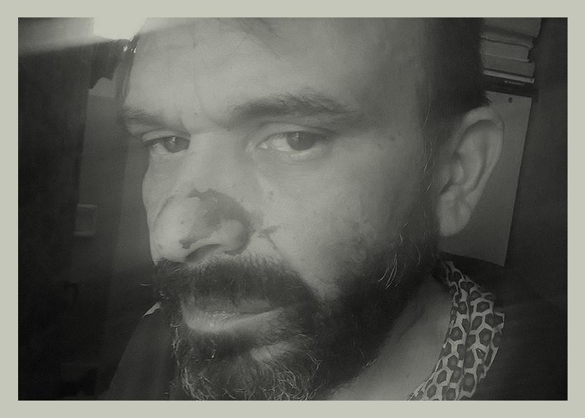 HomoOdio: insultaron, golpearon y balearon a un dramaturgo rosarino